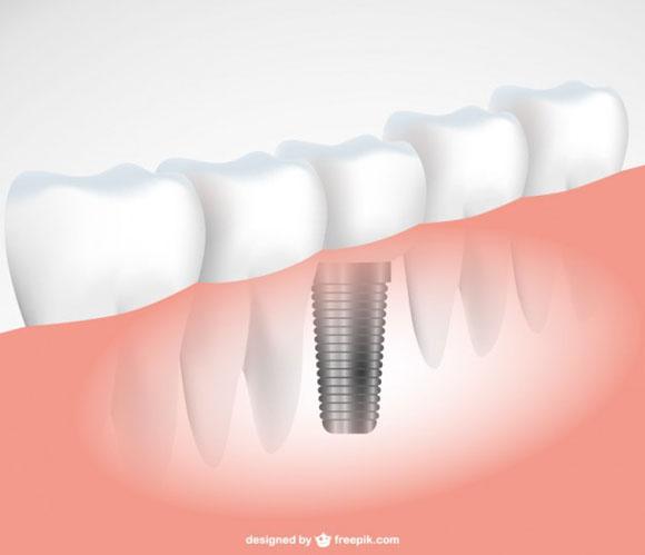 consejos_implante_dental
